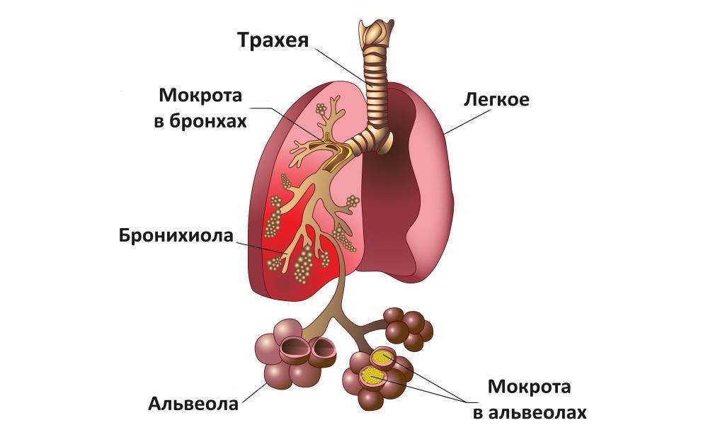 Схематичное изображение пневмонии