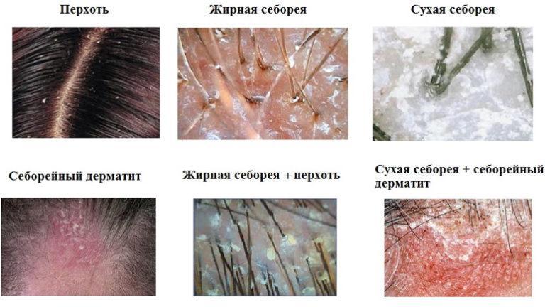 Лечение волос от себореи в домашних условиях