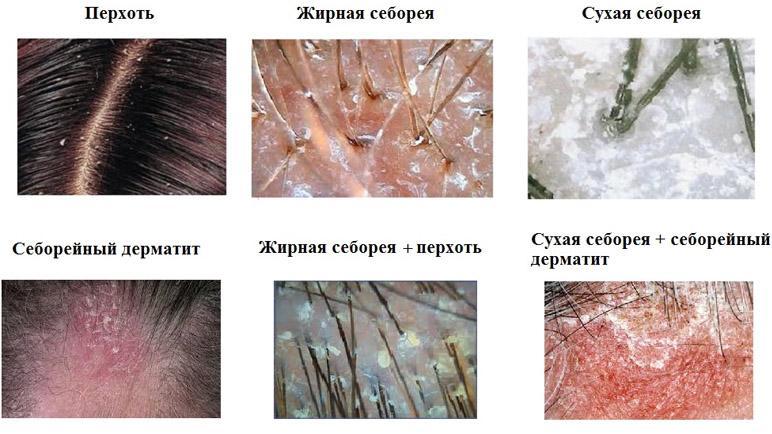 Типы себореи кожи головы