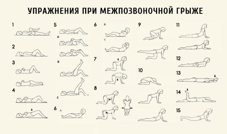 Физические упражнения при протрузии грыже диска