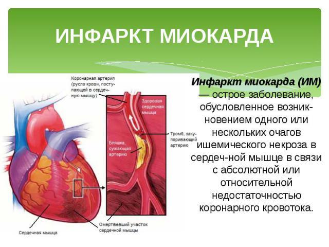 Что такое инфаркт миокарды