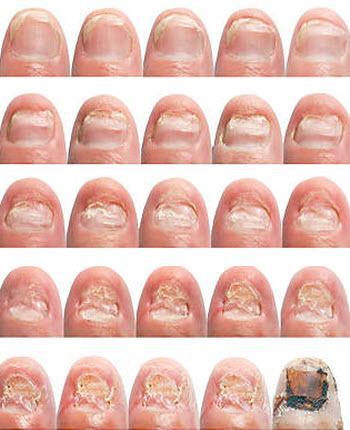 Этапы поражения ногтевой пластины