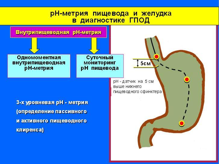 pH-метрия желудка
