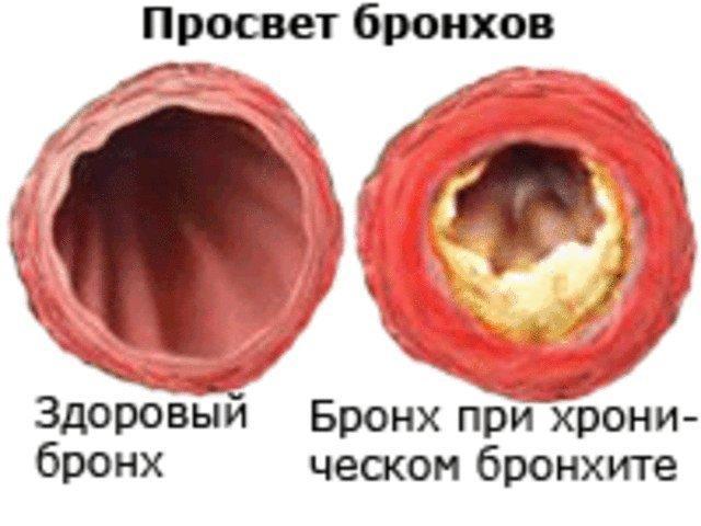 Бронхи при хроническом бронхите