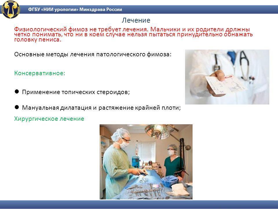 Виды лечения фимоза