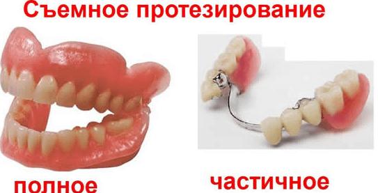 Виды протезов зубов