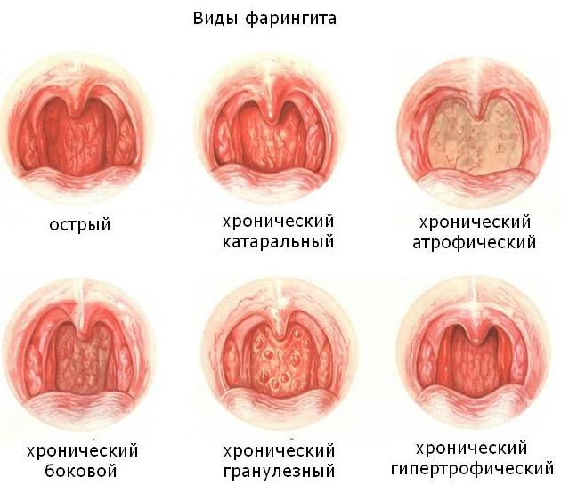 Как лечить атрофический ларингит у взрослых