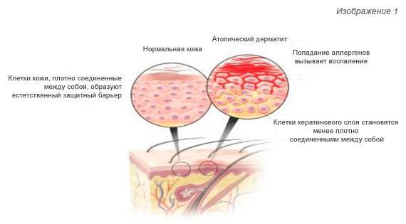 Возникновение атопического дерматита