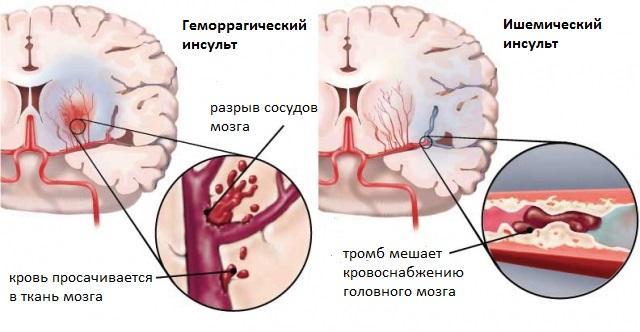 Геморрагический и ишемический инсульт