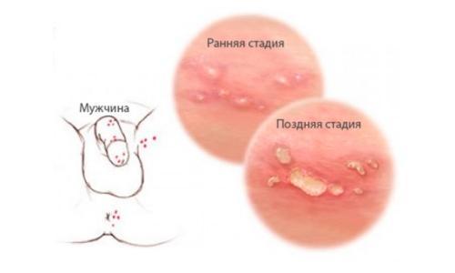 Генитальный герпес - одна из причин зуда в паху у мужчин