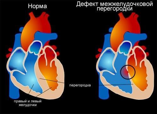 Здоровое сердце и сердце с дефектом межжелудочковой перегородки
