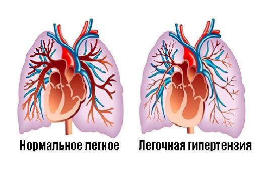 Изображение лёгочной гипертензии