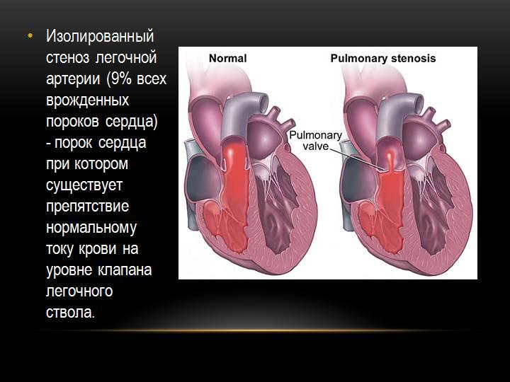 Изолированный стеноз легочной артерии