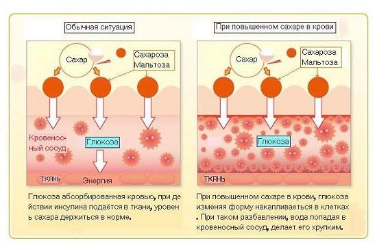 Какие лекарственные препараты повышают уровень сахара в крови