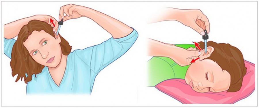 Как правильно закапывать капли в уши взрослым и детям