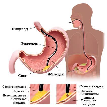 Как проводят биопсию желудка