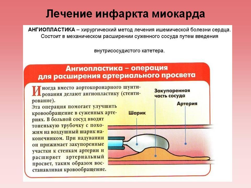 Лечение инфаркта миокарда с помощью ангиопластики