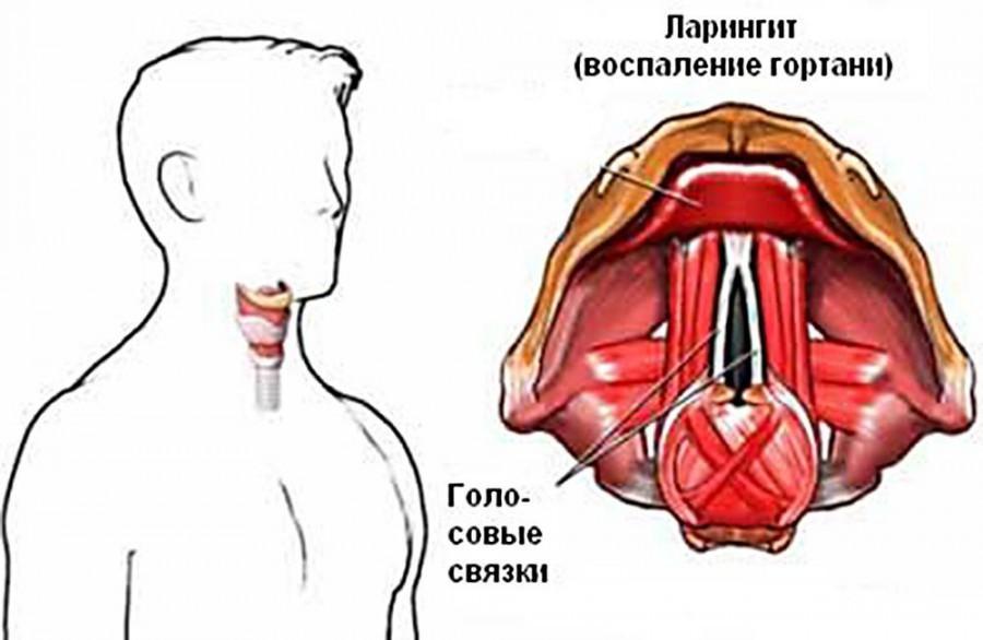 Лечение ларингита у взрослых: препараты