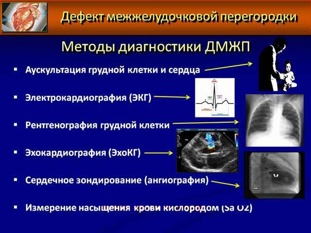 Методы диагностики дефекта межжелудочковой перегородки