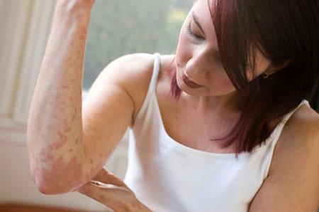 Нейродермит может возникнуть из-за ослабленного иммунитета