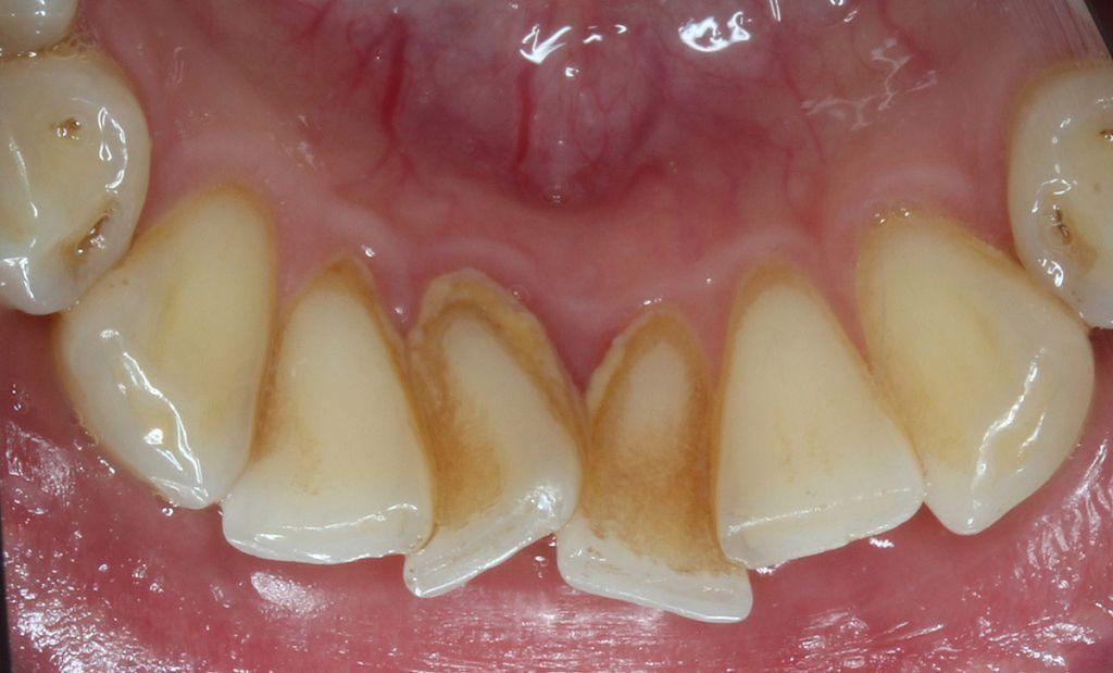 Неправильный прикус вызывает развитие кариеса, пародонтита и прочих заболеваний зубов и десен