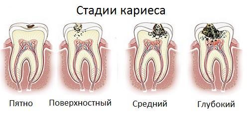 Обладатели второй группы крови склонны к кариесу и другим болезням зубов