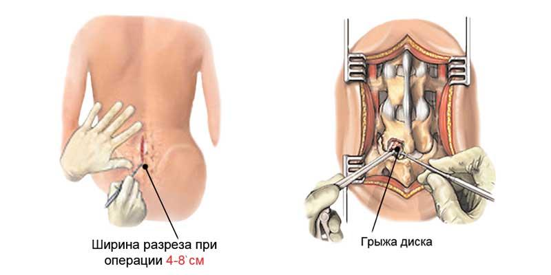 Операция по удалению грыжи пояснично-крестцового отдела
