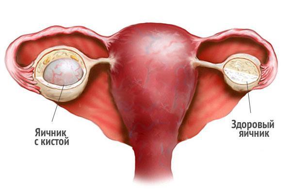 Отличие здорового яичника от яичника с кистой