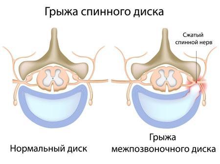 Отличия нормального диска и межпозвоночного диска с грыжей