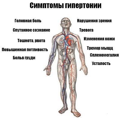 Первые симптомы гипертонии