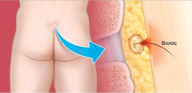 Пилонидальный синус провоцируется неправильным воспалением волосяного фолликула