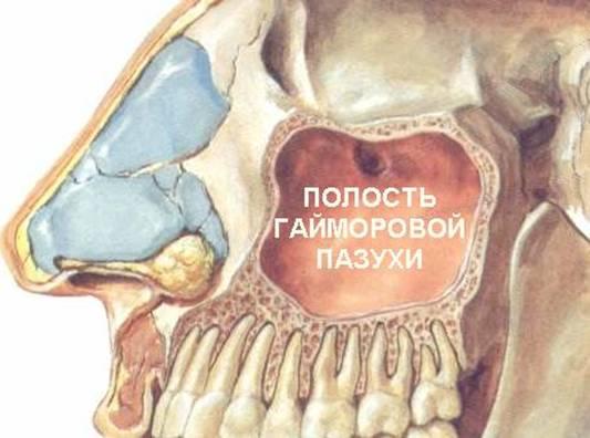 Полость гайморовой пазухи где скапливается гной при гайморите