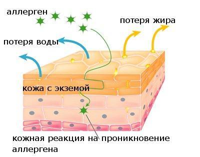 Появление экземы на коже