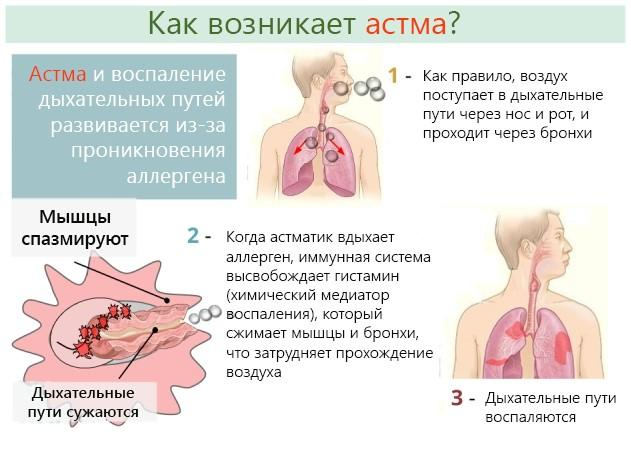 Как в домашних условиях лечить бронхиальную астму