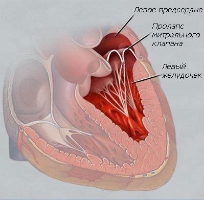 Пролапс передней створки митрального клапана 1 степени