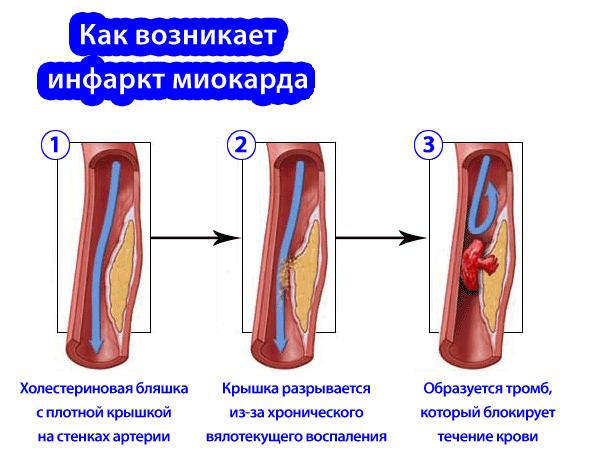 Процесс возникновения инфаркта миокарда