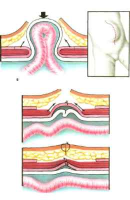 Процесс образования вентральной грыжи