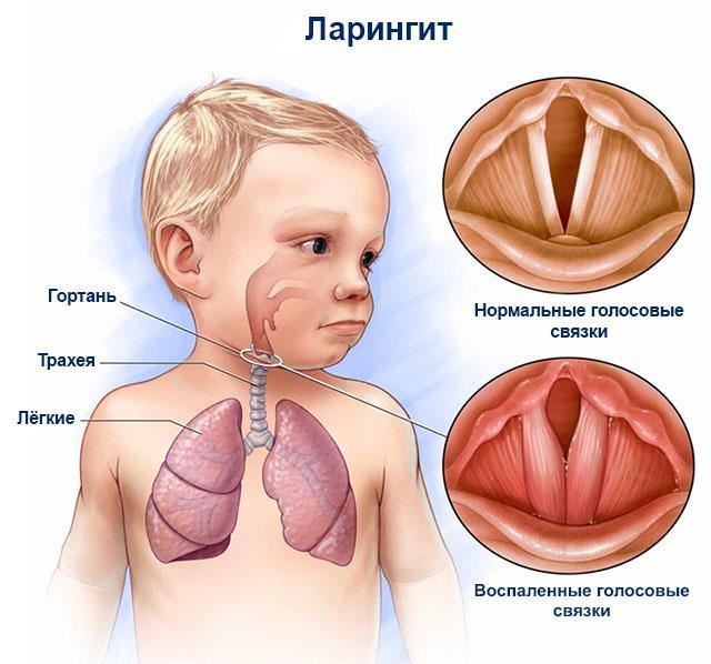 Как лечить ларингит детей в домашних условиях