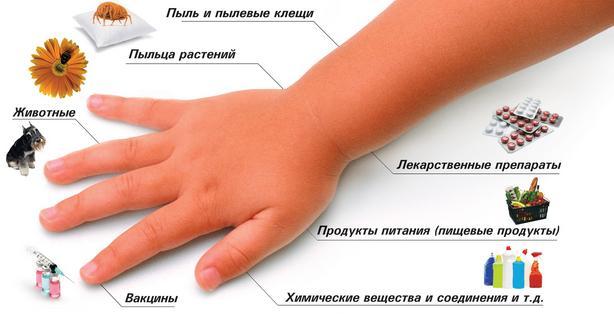 Распространенные причины аллергии
