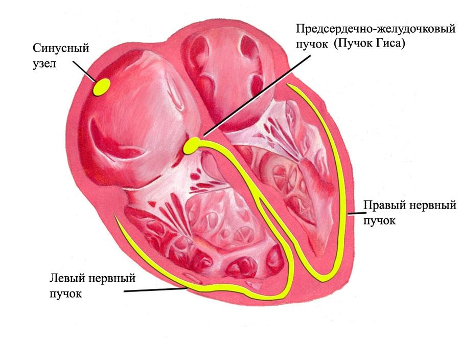 Сердце при абсолютной брадикардии