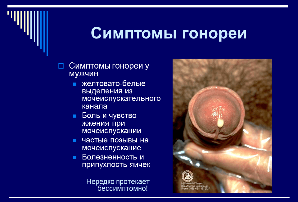 peredaetsya-li-trihomonoz-cherez-oralniy-seks