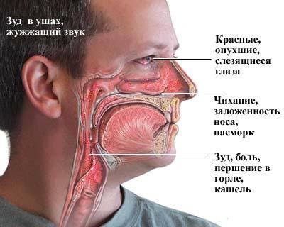 Симптомы и признаки аллергии