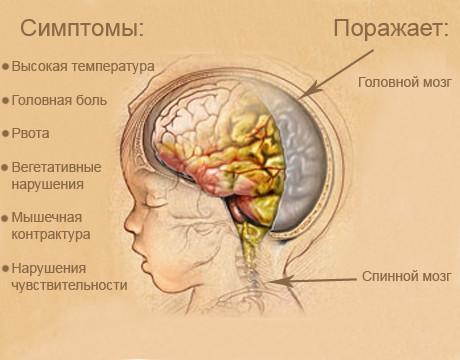 Симптомы менингеального синдрома