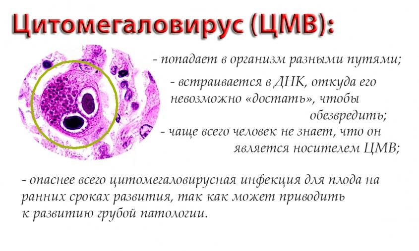 Способы попадания вируса цитомегаловируса