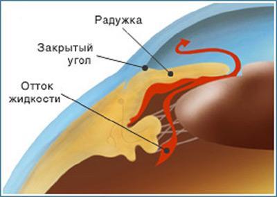 Строение глаза при закрытоугольной глаукоме