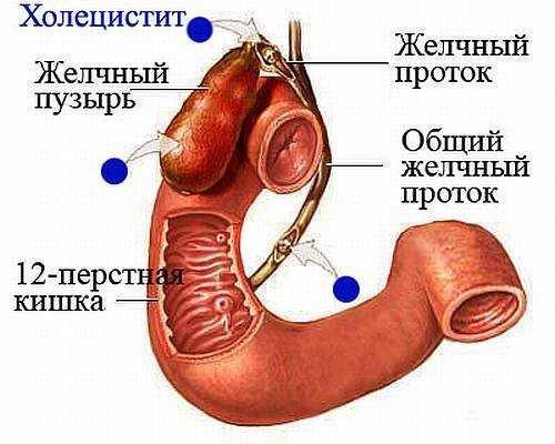 Строение желчного пузыря и расположение холецистита
