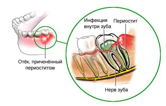 Схематичное изображение периостита