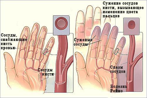 Схематичное изображение синдрома Рейно