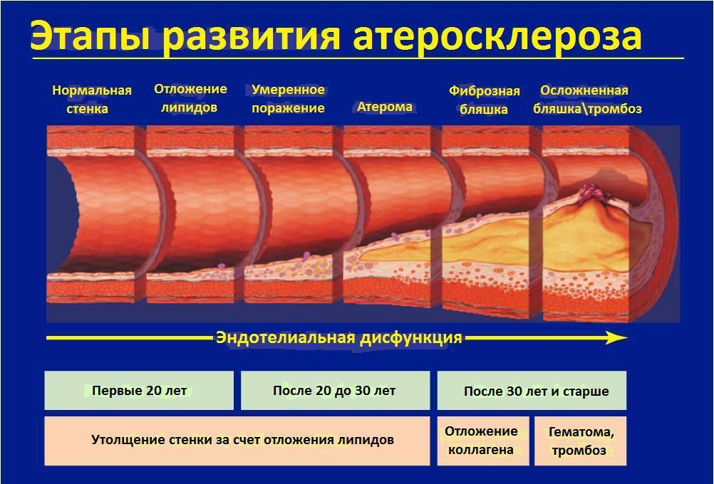 Фазы развития атеросклероза