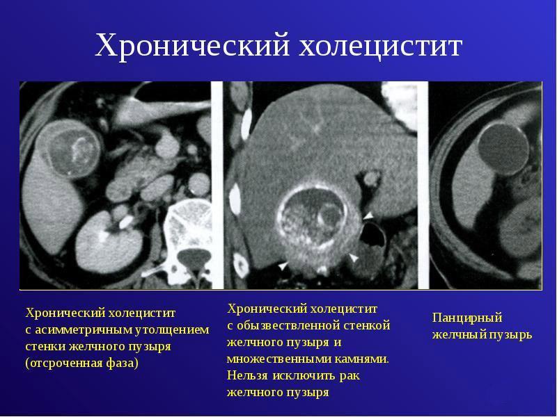 Хронический холецистит на рентгене